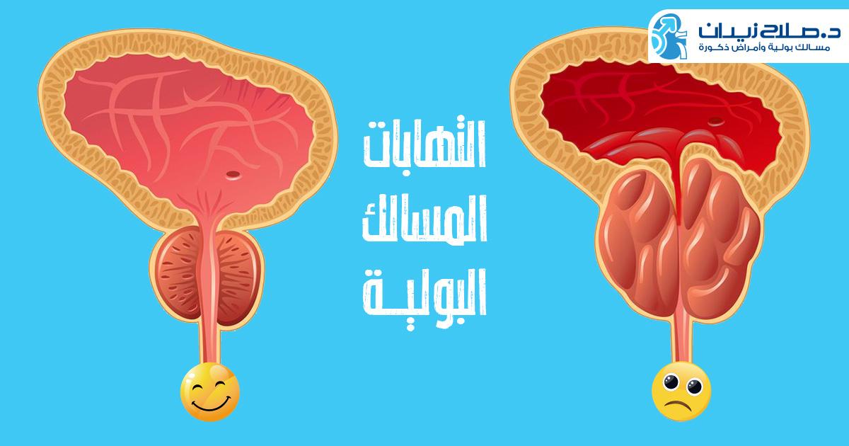 التهابات المسالك البولية
