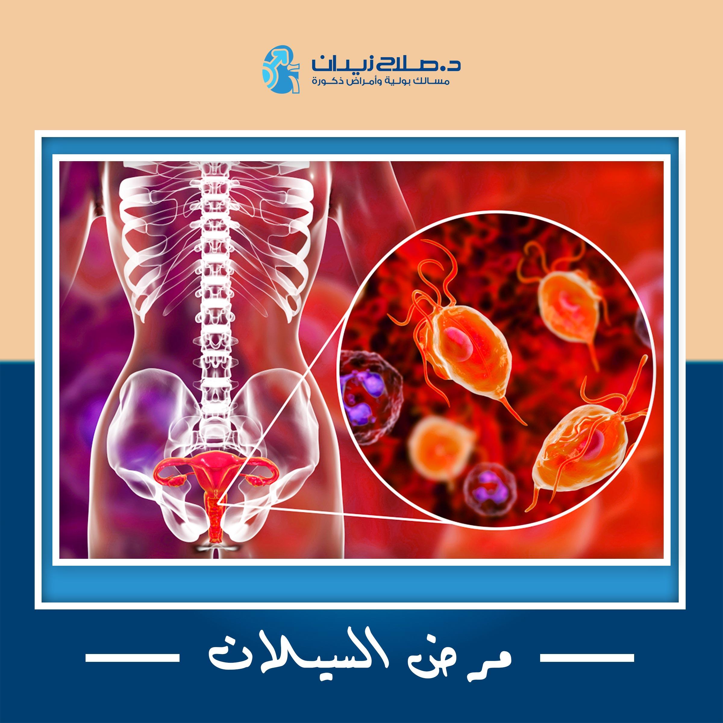 مرض السيلان
